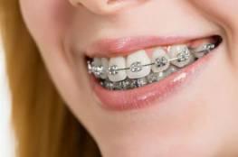 دراسة .. تقويم الأسنان لا فائدة له!