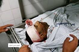 """صور: شهيدان احدهما طفل ومئات الاصابات برصاص قوات الاحتلال في جمعة """"الشهداء الاطفال"""""""