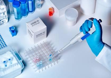 معلومات صادمة: كيف ينقل المصاب بكورونا الفيروس لـ88 ألف شخص؟