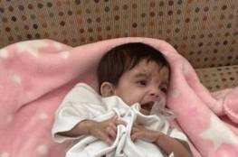 السعودية تجري عملية فصل لتوأم الطفيلي اليمني..كم تستغرق العملية ؟