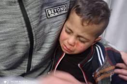 """مستوطنون يصيبون طفلا """"3 سنوات"""" بجروح على مدخل برقة شمال شرق رام الله..فيديو"""