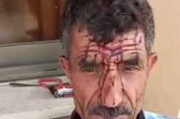 مستوطنون يعتدون على راعي أغنام ويصيبونه بجروح جنوب غرب جنين