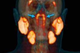 شاهد .. اكتشاف غدد جديدة في جسم الإنسان لم تكن معروفة