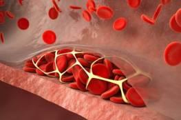 الأعراض الأولى لتشكل الجلطة الدموية