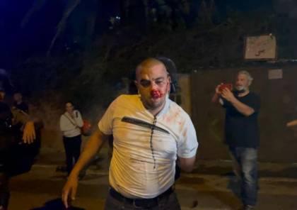 صور : إصابة 20 مواطناً ومتضامناً واعتقال فتاة وشابين خلال مواجهات بالشيخ جراح