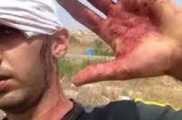 مستوطن يعتدي على شابين برشهما بغاز الفلفل شرق قلقيلية