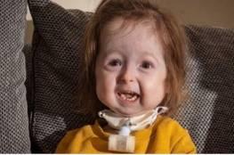 """تغيرات فريدة تحول طفلة بعمر سنتين إلى """"جدة"""""""