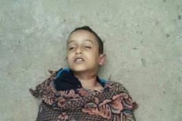 اليمن: طفل ينتحر شنقاً لأن لا ملابس جديدة لديه للعيد!