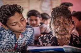 """ما قصة """"الطفل الذئب"""" في الهند؟"""