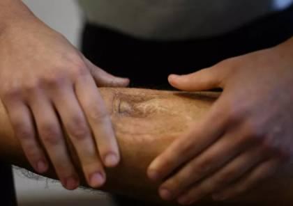 ابتكار أرجل اصطناعية مرتبطة بشبكة عصبية في روسيا