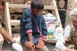 الحديدة : «باليستي» حوثي يقتل طفلاً يمنياً ويصيب عشرات المدنيين بالدريهمي
