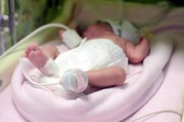 """ولادة طفلة بـ""""12 إصبعا""""... وحالة رعب تصيب أهلها عند تغيير ملابسها"""