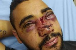 الاحتلال يتسبب بتشوه في وجه الجريح أبو زيتون وضرر كبير بعينه