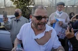التحقيق مع 4 ضباط شرطة إسرائيليين في الاعتداء على كسيف