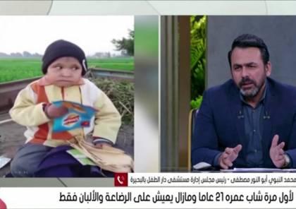 بالفيديو .. شاب مصري (21 عاما) يعيش على الرضاعة والألبان