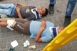 صور.. اصابة 4 اطفال فلسطينيين دهسا بسيارة مستوطن بالقدس