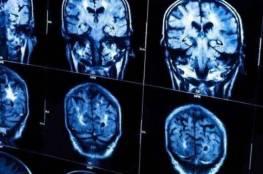 الذكاء يجعلك أكثر عرضة لسرطان الدماغ!