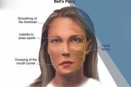 """""""الوجه الآلي"""" تقنية جديدة لعلاج شلل الوجه النصفي"""