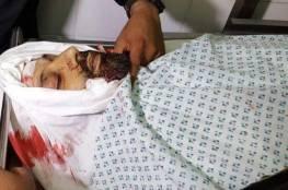 صور : شهيد و3 إصابات في قصف إسرائيلي شرق رفح