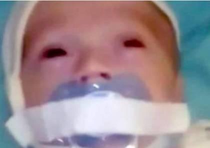 """شاهد.. لصق """"مصّاصة"""" على فم طفل بمستشفى روسي"""
