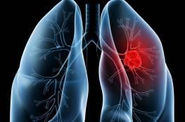 الدهون سبب لـ سرطان الرئة