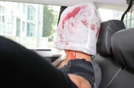 ألمانيا: منفذ هجوم هامبورغ من غزة اصبح متشددا في الفترة الاخيرة من حياته