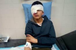 اصابة طفل برصاص مطاطي في عينه بالخليل