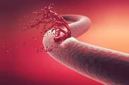 4 علامات للنزيف الدموي ينبغي على النساء الحذر منها!