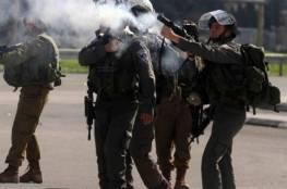طوباس: إصابة مواطن في رأسه خلال قمع الاحتلال مسيرة منددة بمخطط الضم