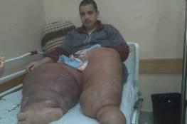"""صور .. غزة : مريض مصاب بداء """"الفيل"""" يناشد الرئيس ووزير الصحة بإنقاذه قبل الموت!"""