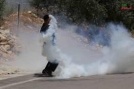 إصابة 23 مواطنا في مواجهات مع قوات الاحتلال في بلدة أبو ديس