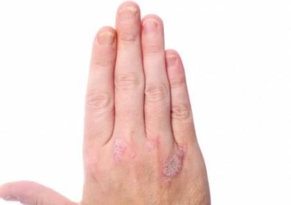 تغيرات الأظافر تدق ناقوس خطر قد يصل للسرطان