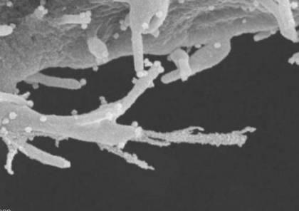 """دراسة: فيروس كورونا يهاجم خلايا الجسم مثل """"الزومبي"""""""