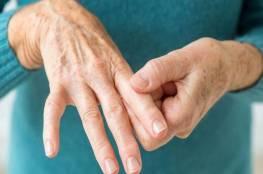 إرشادات طبية للتخلص من التهاب المفاصل