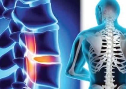 العلاج الفعال لتضيق العمود الفقري في ألمانيا