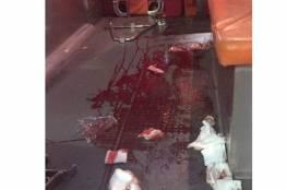 إصابة شاب برصاص الاحتلال خلال اقتحام قبر يوسف بنابلس