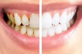 طريقة مذهلة لتبييض الأسنان !