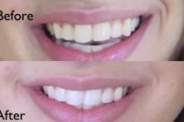 ما الفرق بين تبييض الأسنان وتنظيفها ؟