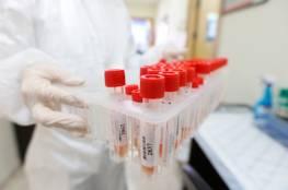 """دراسة: حيوان قد يحمل سر علاج مرضى """"كوفيد-19"""" الحاد!"""