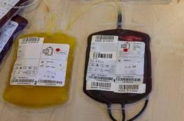 """كشف خطر استخدام """"الدم"""" لمكافحة الشيخوخة"""