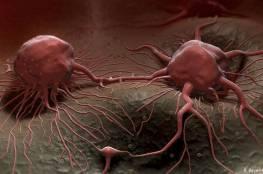 علماء يكتشفون مادة تجبر خلايا السرطان على الانتحار