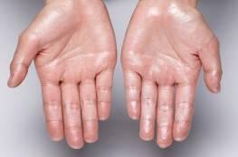 علاج تعرق اليدين: أهم الطرق الطبية والطبيعية