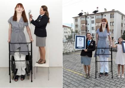 تركية تدخل غينيس كونها أطول امرأة على قيد الحياة في العالم (فيديو وصور)