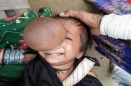 شاهد..طفل باكستاني كبر أنفه وأصبح أكبر من الكرة!