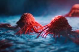 خمسة أعراض شائعة للسرطان نتغاضى عنها