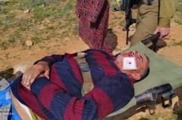 اصابة ٦ مواطنين بينهم أطفال بعد اعتداء المستوطنين عليهم بالخليل