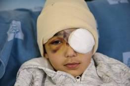 الاحتلال يغلق ملف التحقيق بجريمة إطلاق النار على الطفل مالك عيسى