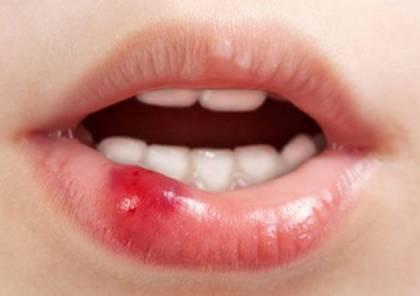 هذه العوارض البسيطة التي قد تؤدي الى سرطان الفم