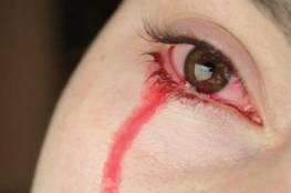الدموع تساعد على اكتشاف نوع من السرطان