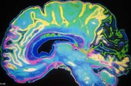 شكل دماغك.. يتحكم بمزاجك